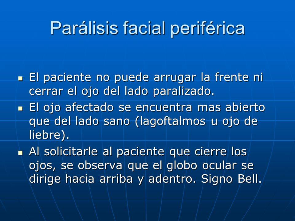 Parálisis facial periférica El paciente no puede arrugar la frente ni cerrar el ojo del lado paralizado. El paciente no puede arrugar la frente ni cer