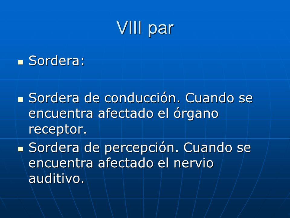 VIII par Sordera: Sordera: Sordera de conducción. Cuando se encuentra afectado el órgano receptor. Sordera de conducción. Cuando se encuentra afectado