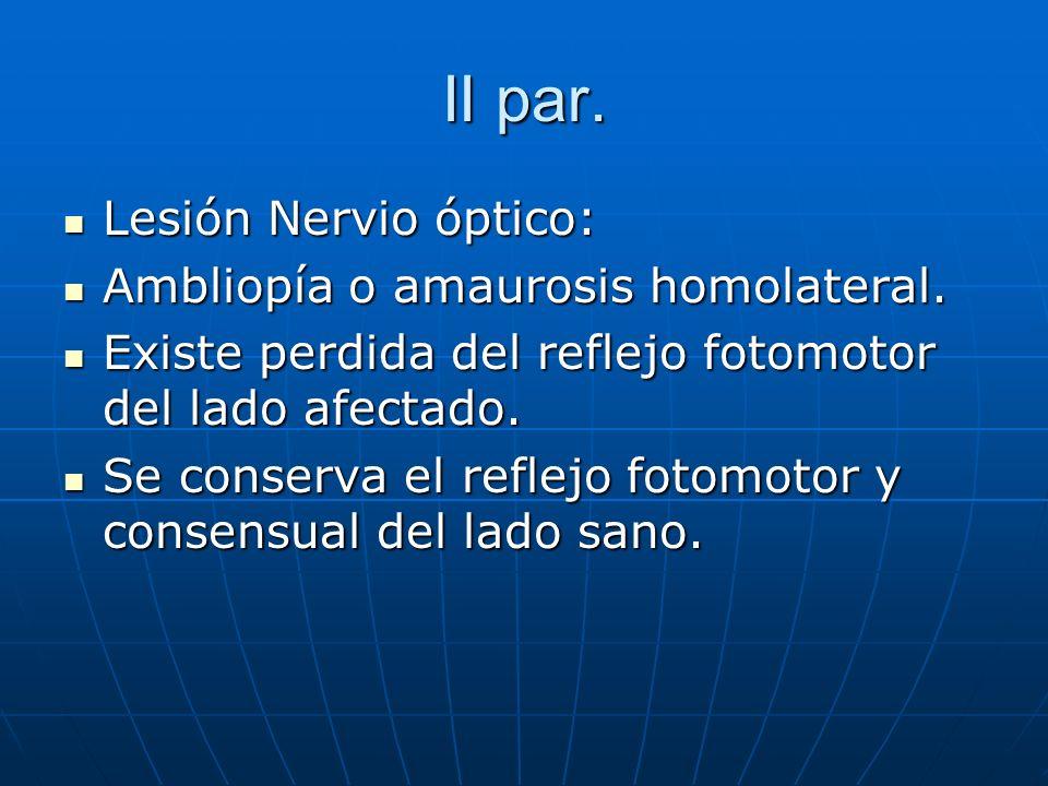 II par. Lesión Nervio óptico: Lesión Nervio óptico: Ambliopía o amaurosis homolateral. Ambliopía o amaurosis homolateral. Existe perdida del reflejo f