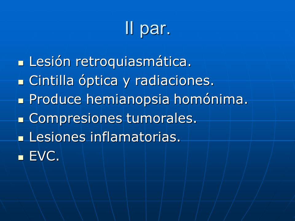 II par. Lesión retroquiasmática. Lesión retroquiasmática. Cintilla óptica y radiaciones. Cintilla óptica y radiaciones. Produce hemianopsia homónima.