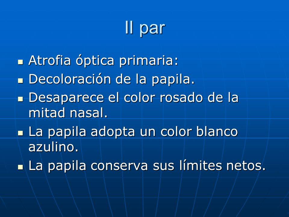 II par Atrofia óptica primaria: Atrofia óptica primaria: Decoloración de la papila. Decoloración de la papila. Desaparece el color rosado de la mitad