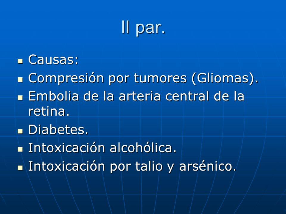II par. Causas: Causas: Compresión por tumores (Gliomas). Compresión por tumores (Gliomas). Embolia de la arteria central de la retina. Embolia de la