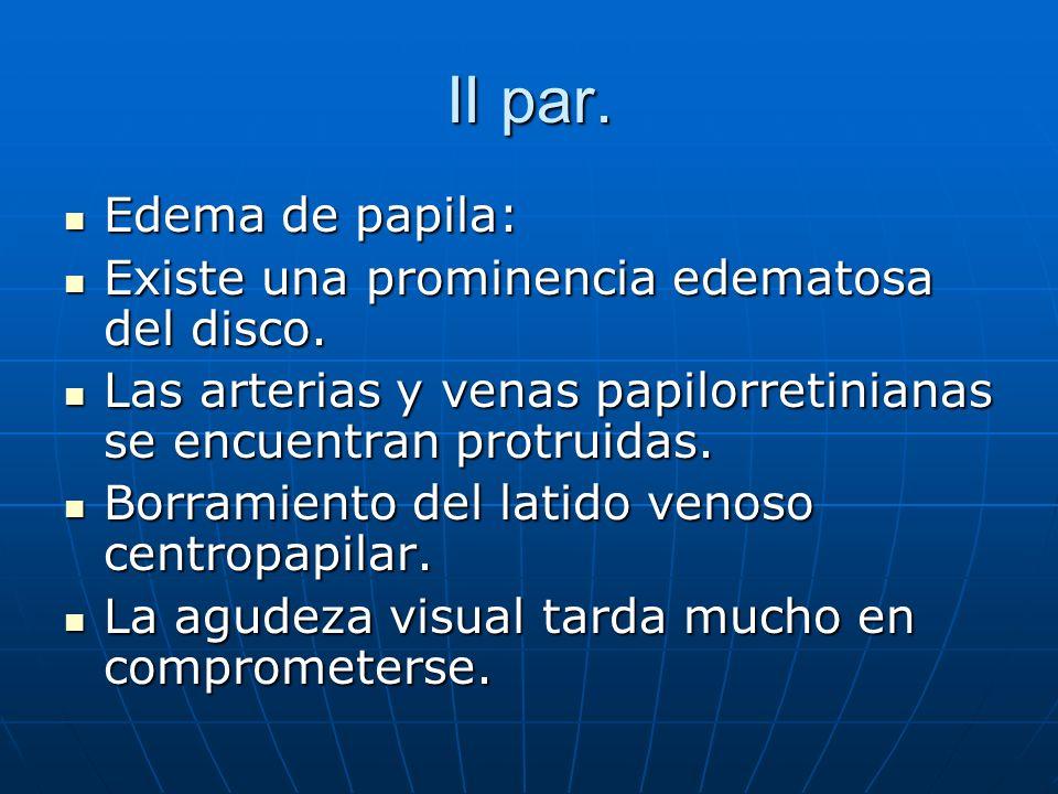 II par. Edema de papila: Edema de papila: Existe una prominencia edematosa del disco. Existe una prominencia edematosa del disco. Las arterias y venas