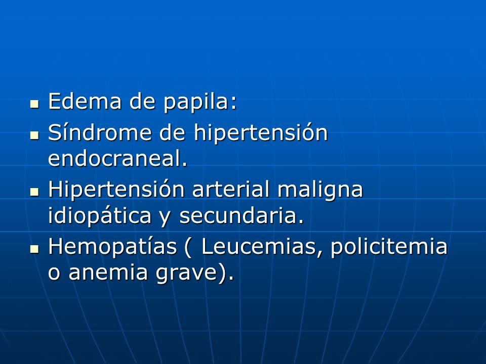 Edema de papila: Edema de papila: Síndrome de hipertensión endocraneal. Síndrome de hipertensión endocraneal. Hipertensión arterial maligna idiopática