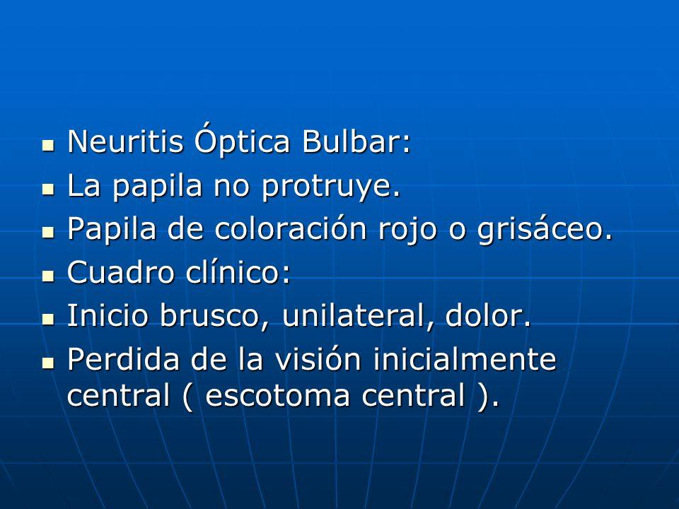 Neuritis Óptica Bulbar: Neuritis Óptica Bulbar: La papila no protruye. La papila no protruye. Papila de coloración rojo o grisáceo. Papila de coloraci