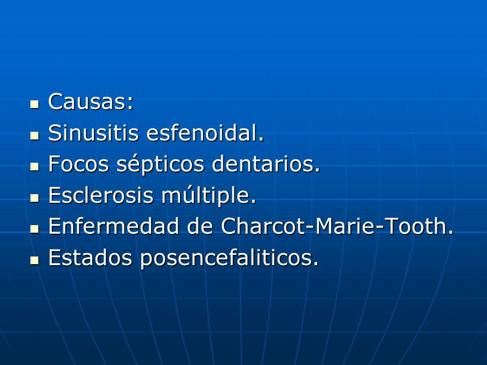 Causas: Causas: Sinusitis esfenoidal. Sinusitis esfenoidal. Focos sépticos dentarios. Focos sépticos dentarios. Esclerosis múltiple. Esclerosis múltip