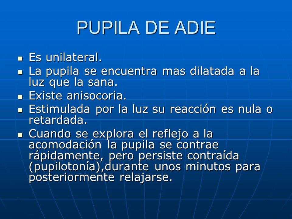 PUPILA DE ADIE Es unilateral. Es unilateral. La pupila se encuentra mas dilatada a la luz que la sana. La pupila se encuentra mas dilatada a la luz qu