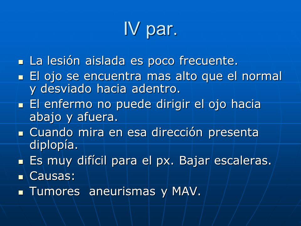 IV par. La lesión aislada es poco frecuente. La lesión aislada es poco frecuente. El ojo se encuentra mas alto que el normal y desviado hacia adentro.
