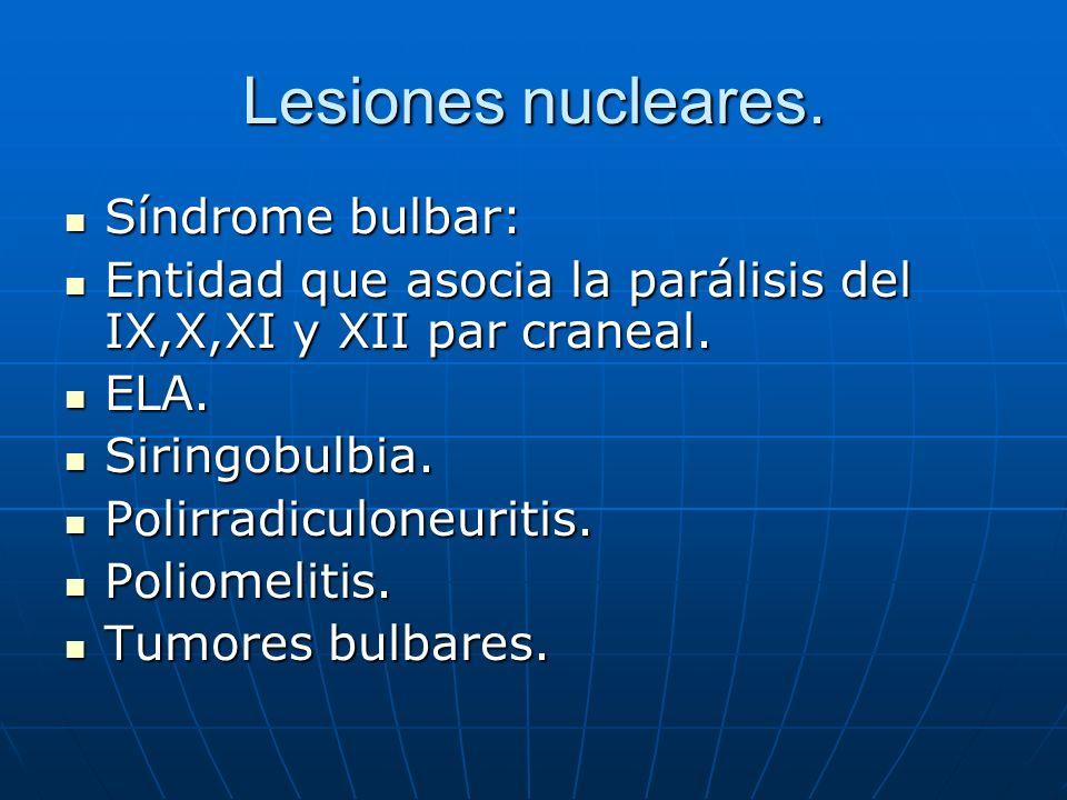 Lesiones nucleares. Síndrome bulbar: Síndrome bulbar: Entidad que asocia la parálisis del IX,X,XI y XII par craneal. Entidad que asocia la parálisis d
