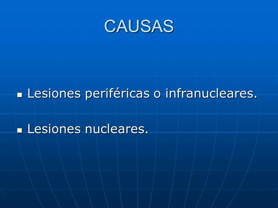 CAUSAS Lesiones periféricas o infranucleares. Lesiones periféricas o infranucleares. Lesiones nucleares. Lesiones nucleares.