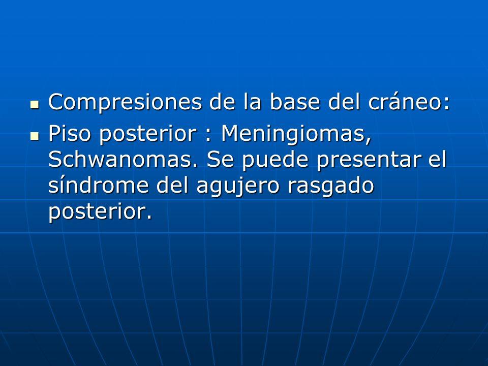 Compresiones de la base del cráneo: Compresiones de la base del cráneo: Piso posterior : Meningiomas, Schwanomas. Se puede presentar el síndrome del a