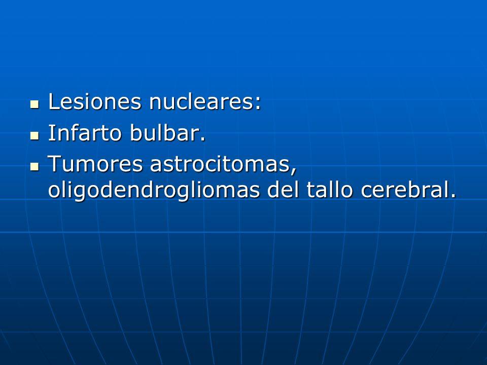 Lesiones nucleares: Lesiones nucleares: Infarto bulbar. Infarto bulbar. Tumores astrocitomas, oligodendrogliomas del tallo cerebral. Tumores astrocito