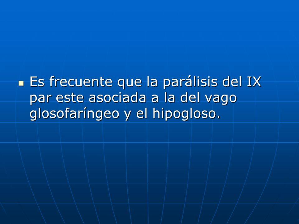 Es frecuente que la parálisis del IX par este asociada a la del vago glosofaríngeo y el hipogloso. Es frecuente que la parálisis del IX par este asoci