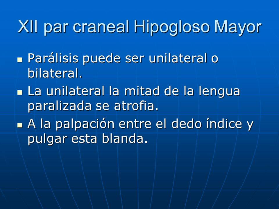 XII par craneal Hipogloso Mayor Parálisis puede ser unilateral o bilateral. Parálisis puede ser unilateral o bilateral. La unilateral la mitad de la l