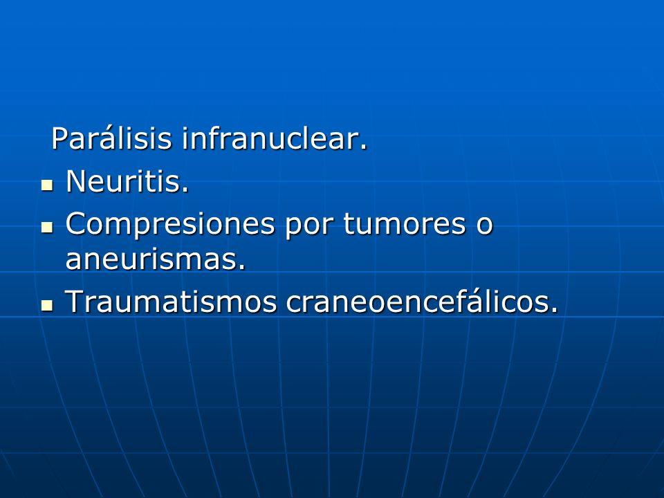 Parálisis infranuclear. Parálisis infranuclear. Neuritis. Neuritis. Compresiones por tumores o aneurismas. Compresiones por tumores o aneurismas. Trau