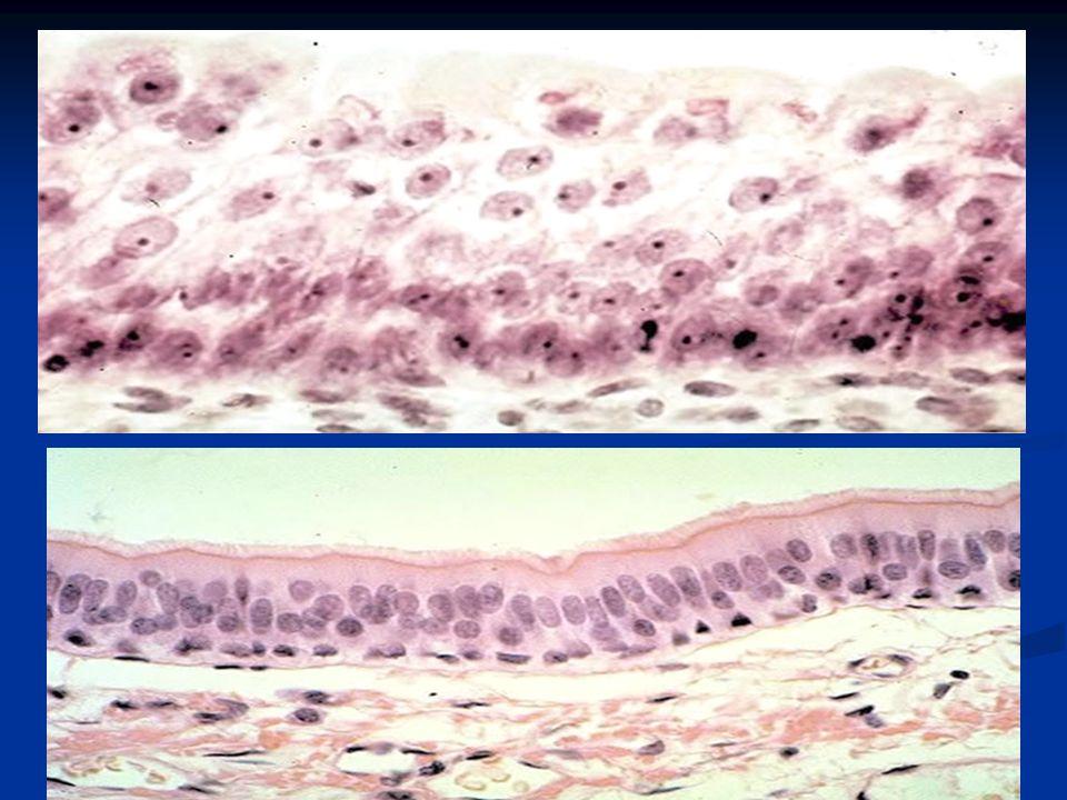 Según la forma de excreción se divide en: a.- Merocrinas, cuando solo elimina su producto de excreción – páncreas – gs b.- Holocrinas, cuando todas Sus células se desprenden junto con el producto de excreción- gland.