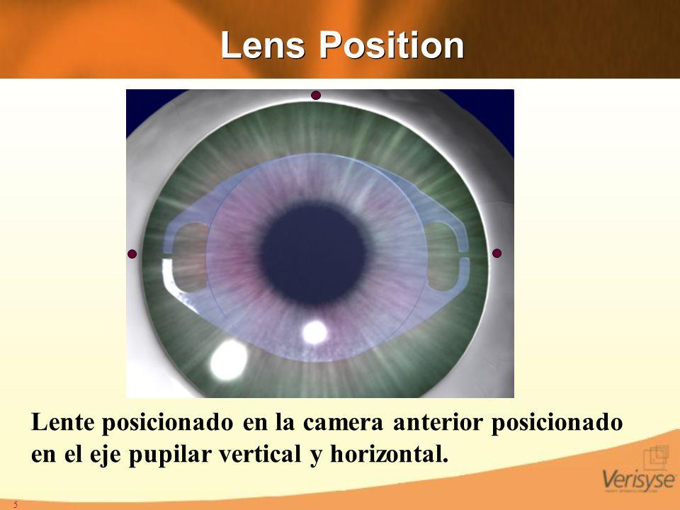 5 Lens Position Lente posicionado en la camera anterior posicionado en el eje pupilar vertical y horizontal.