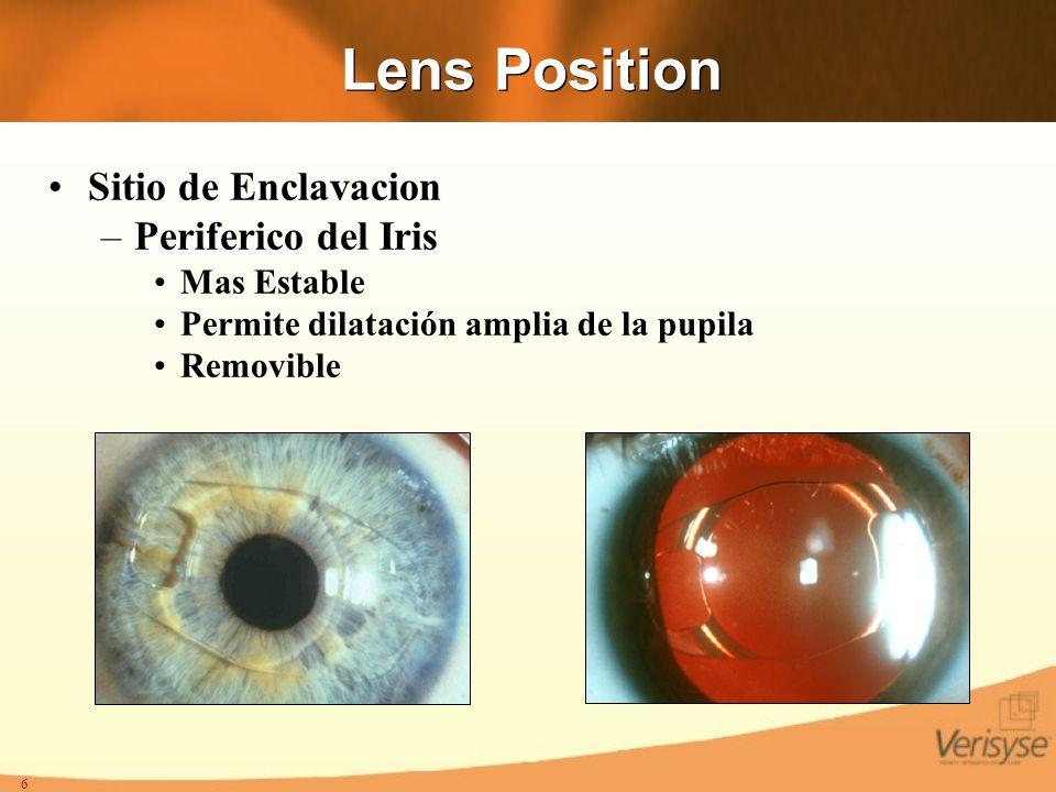 6 Lens Position Sitio de Enclavacion –Periferico del Iris Mas Estable Permite dilatación amplia de la pupila Removible