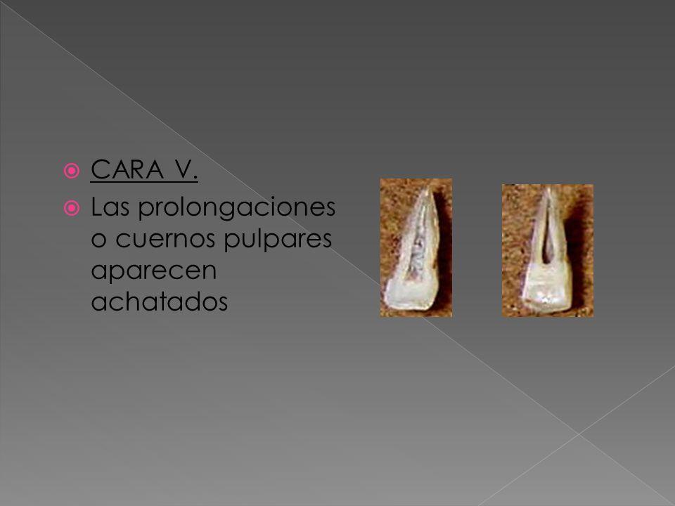 CARA V. Las prolongaciones o cuernos pulpares aparecen achatados