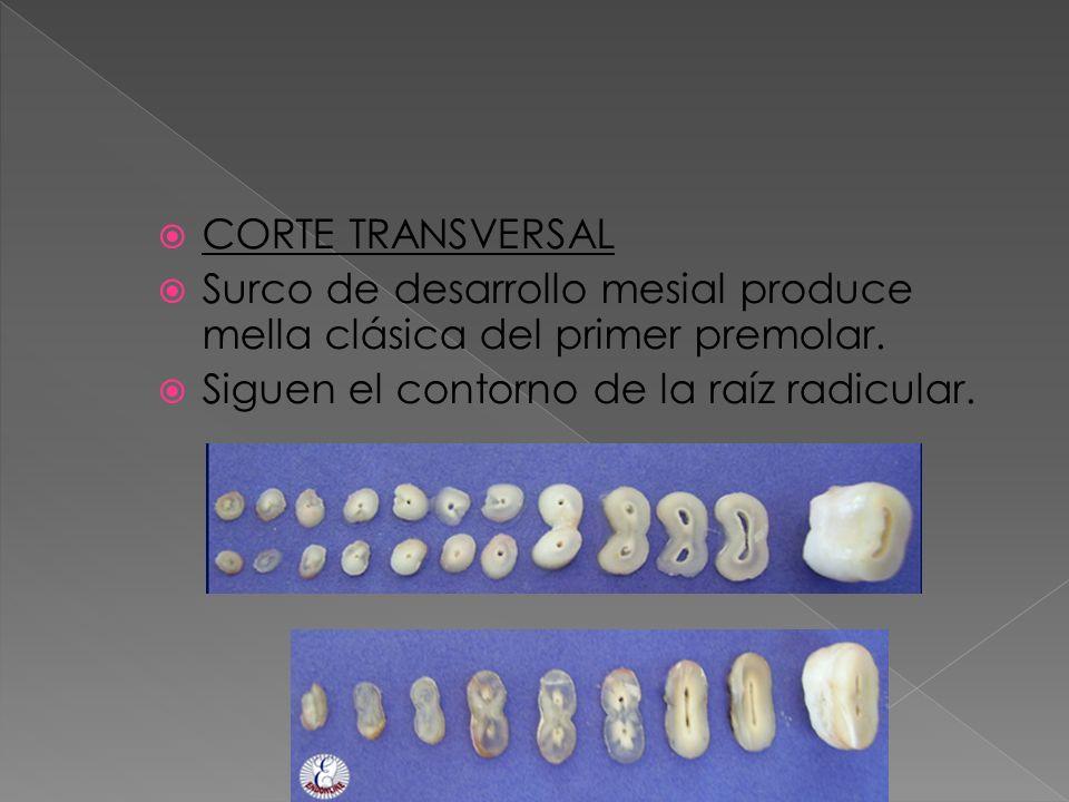 CORTE TRANSVERSAL Surco de desarrollo mesial produce mella clásica del primer premolar. Siguen el contorno de la raíz radicular.