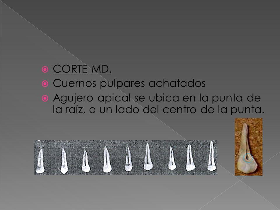 CORTE MD. Cuernos pulpares achatados Agujero apical se ubica en la punta de la raíz, o un lado del centro de la punta.