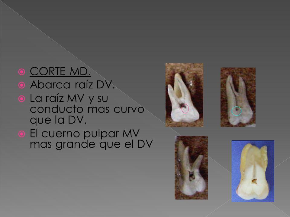 CORTE MD. Abarca raíz DV. La raíz MV y su conducto mas curvo que la DV. El cuerno pulpar MV mas grande que el DV
