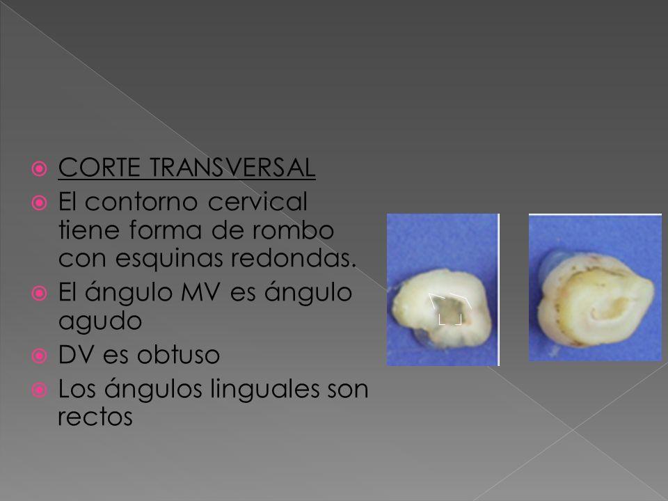 CORTE TRANSVERSAL El contorno cervical tiene forma de rombo con esquinas redondas. El ángulo MV es ángulo agudo DV es obtuso Los ángulos linguales son