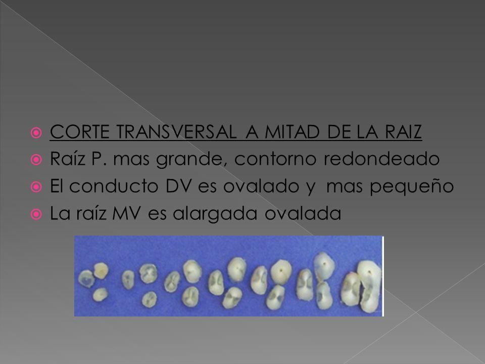 CORTE TRANSVERSAL A MITAD DE LA RAIZ Raíz P. mas grande, contorno redondeado El conducto DV es ovalado y mas pequeño La raíz MV es alargada ovalada