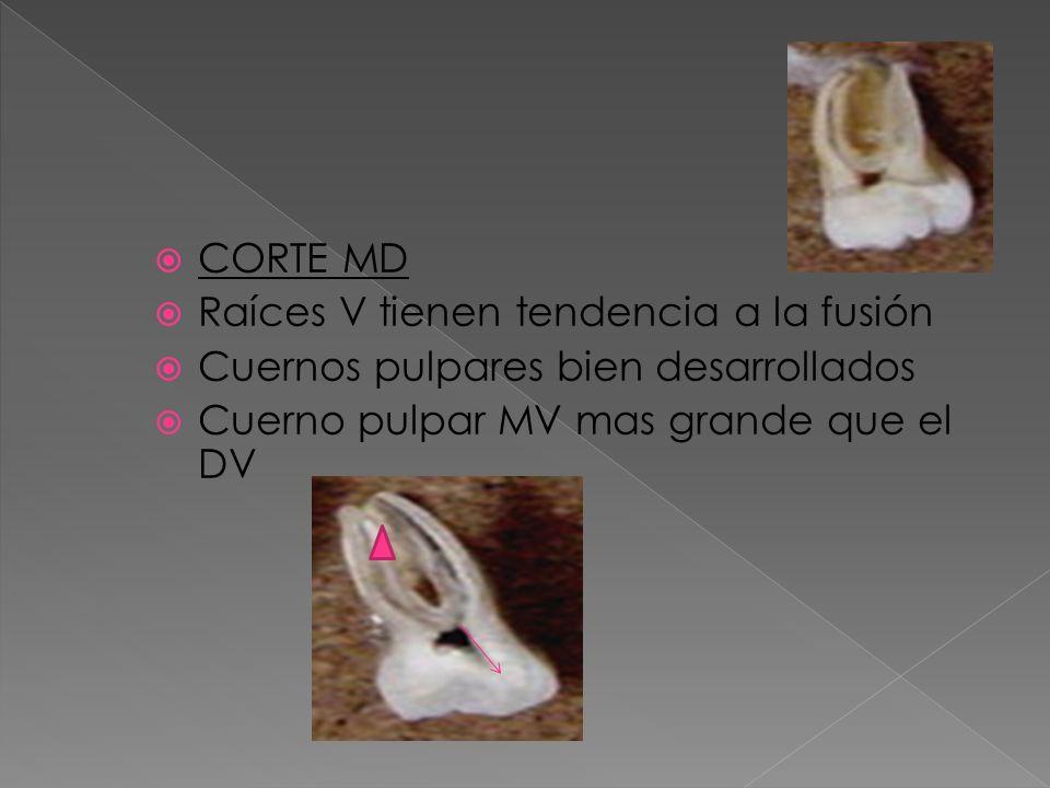 CORTE MD Raíces V tienen tendencia a la fusión Cuernos pulpares bien desarrollados Cuerno pulpar MV mas grande que el DV