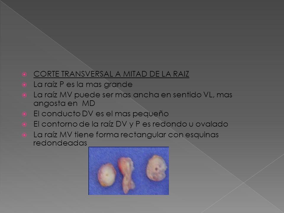CORTE TRANSVERSAL A MITAD DE LA RAIZ La raíz P es la mas grande La raíz MV puede ser mas ancha en sentido VL, mas angosta en MD El conducto DV es el m