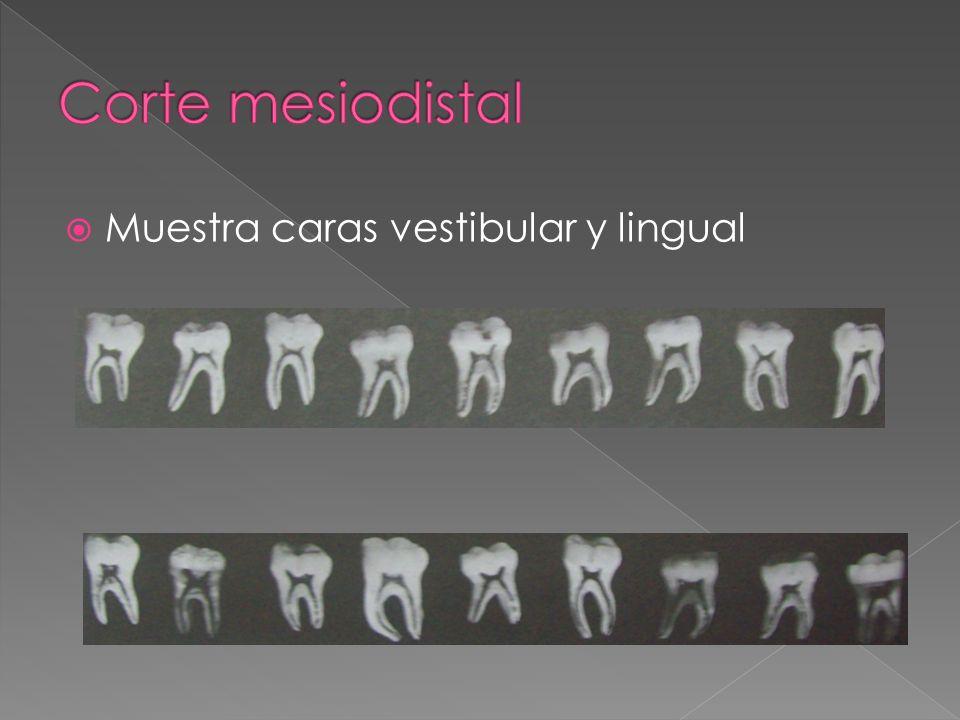 Muestra caras vestibular y lingual
