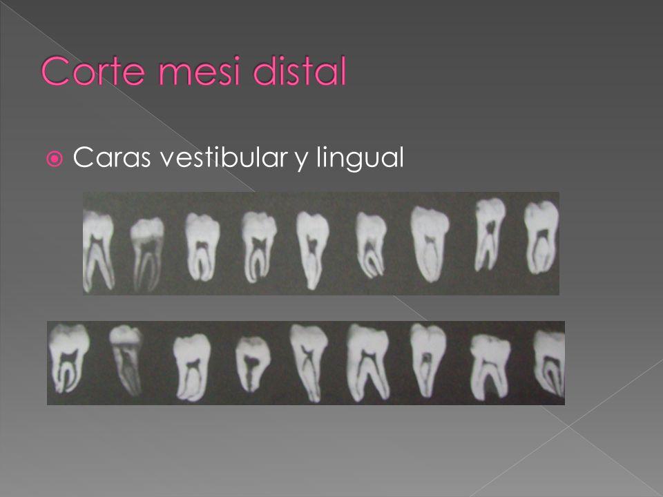 Caras vestibular y lingual