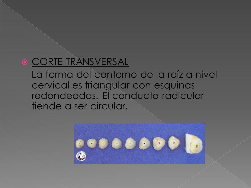 CORTE TRANSVERSAL La forma del contorno de la raíz a nivel cervical es triangular con esquinas redondeadas. El conducto radicular tiende a ser circula