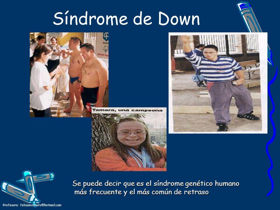 Profesora: felisamolinero@hotmail.com Síndrome de Down Se puede decir que es el síndrome genético humano más frecuente y el más común de retraso más f