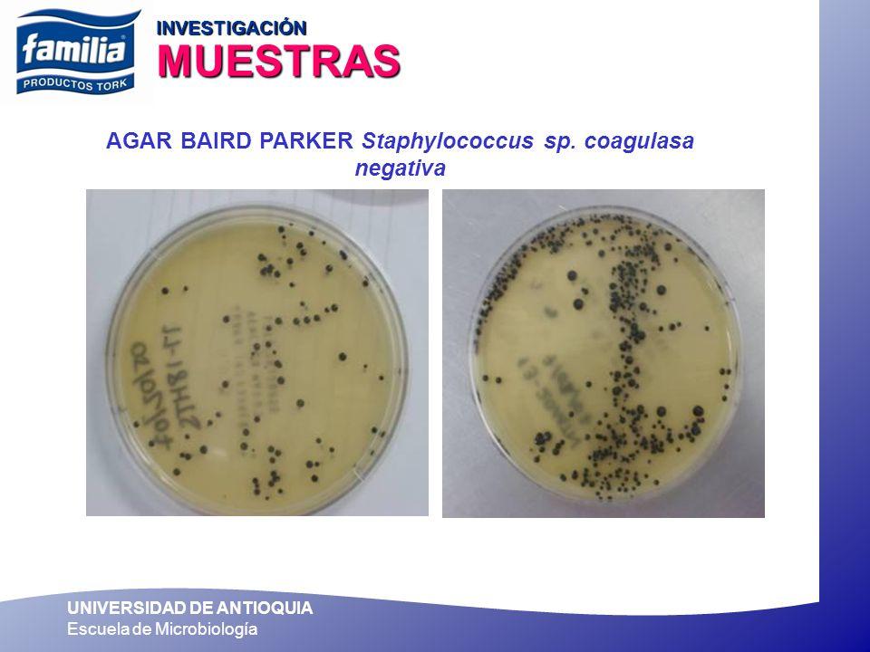 UNIVERSIDAD DE ANTIOQUIA Escuela de Microbiología AGAR BAIRD PARKER Staphylococcus sp. coagulasa negativa INVESTIGACIÓN MUESTRAS