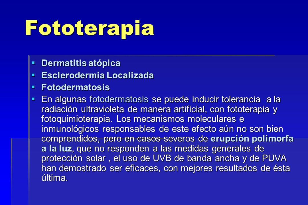 Fototerapia Dermatitis atópica Dermatitis atópica Esclerodermia Localizada Esclerodermia Localizada Fotodermatosis Fotodermatosis En algunas fotoderma