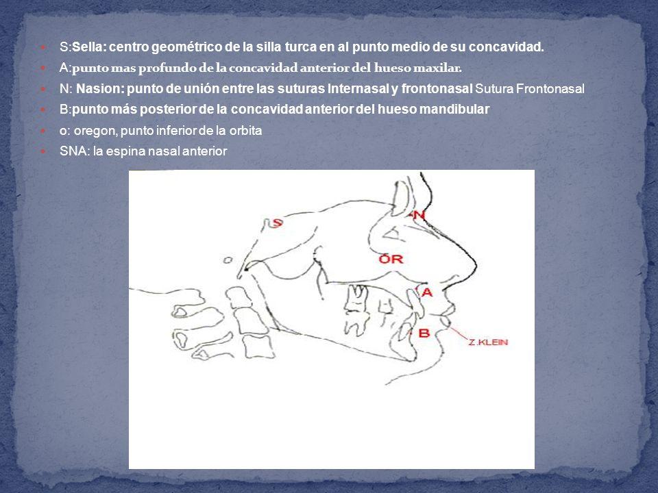 S:Sella: centro geométrico de la silla turca en al punto medio de su concavidad. A: punto mas profundo de la concavidad anterior del hueso maxilar. N: