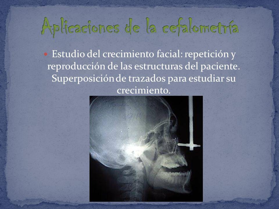 Diagnóstico de posibles patologías especiales, tales como dilaceraciones, traumatismos.