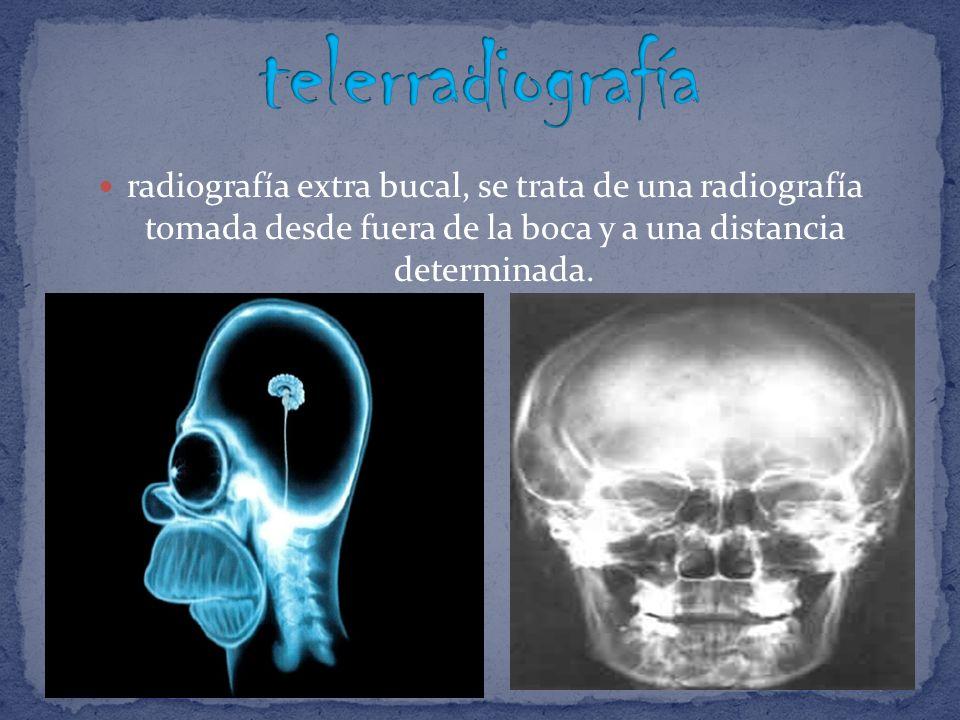 Para realizar la telerradiografía, la cabeza del paciente se orienta en el espacio como un cuerpo sólido, es decir, mediante tres planos o ejes que confluyen en el centro.
