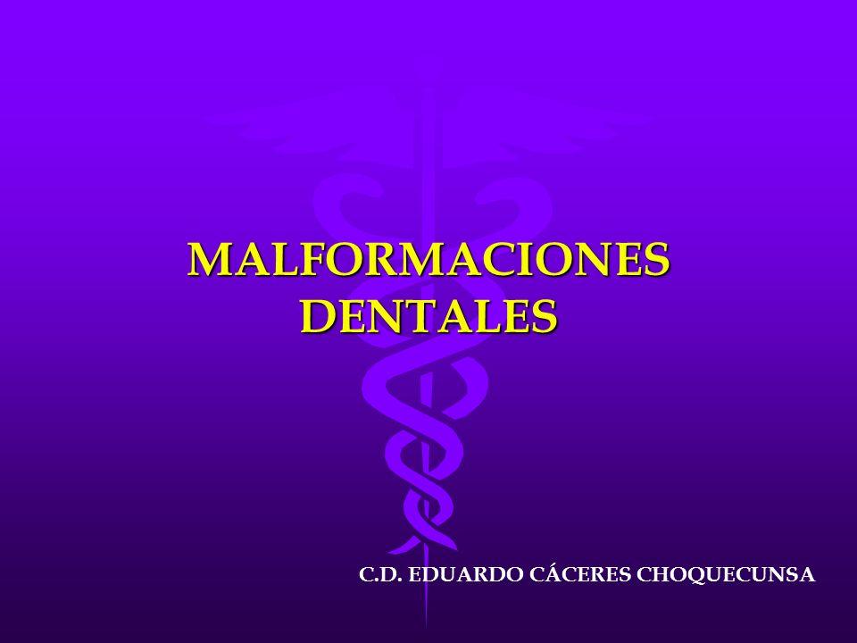 MALFORMACIONES DENTALES C.D. EDUARDO CÁCERES CHOQUECUNSA