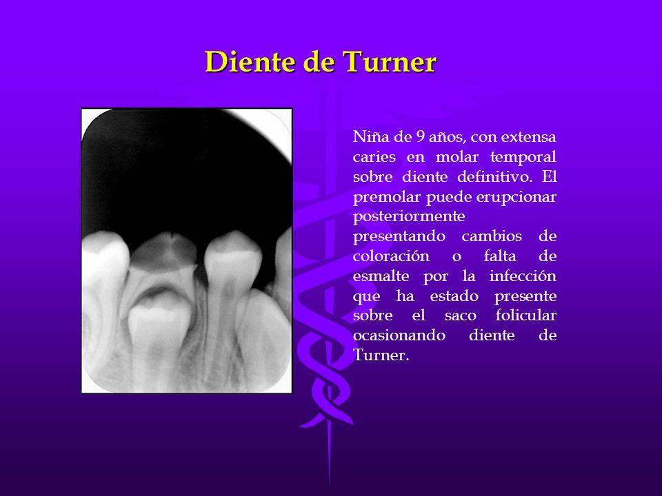 Diente de Turner Niña de 9 años, con extensa caries en molar temporal sobre diente definitivo. El premolar puede erupcionar posteriormente presentando