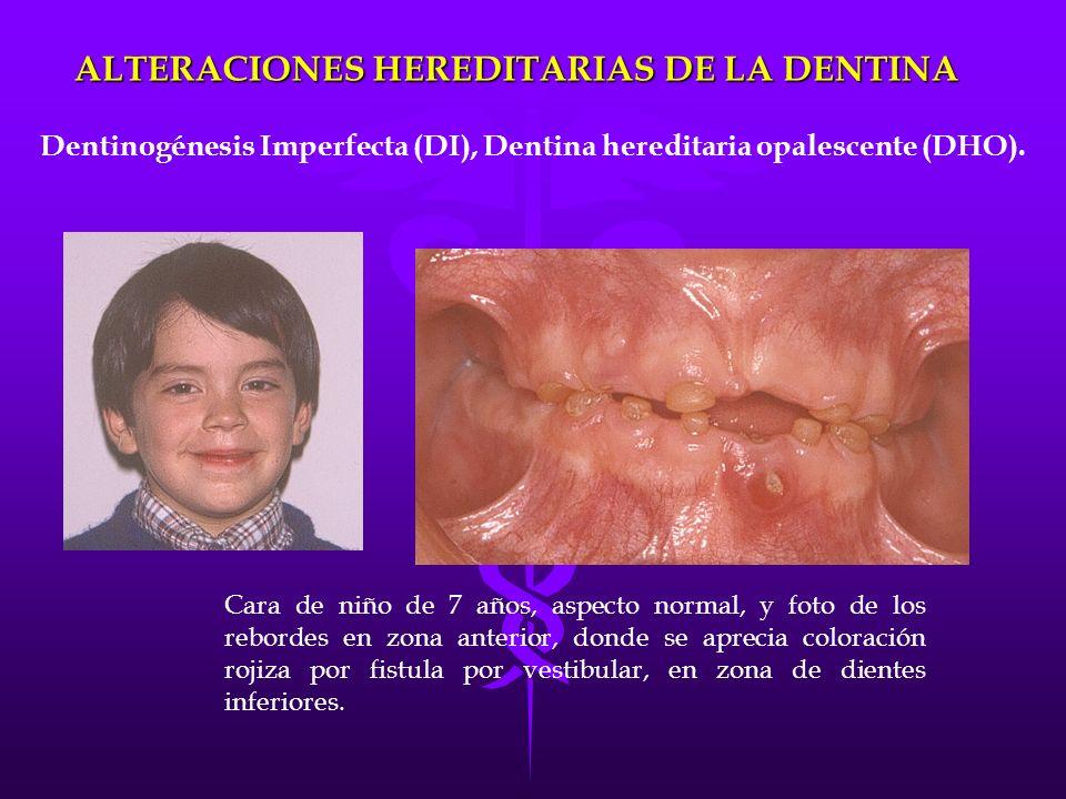 Cara de niño de 7 años, aspecto normal, y foto de los rebordes en zona anterior, donde se aprecia coloración rojiza por fistula por vestibular, en zon
