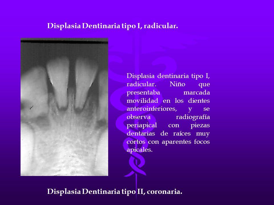 Displasia dentinaria tipo I, radicular. Niño que presentaba marcada movilidad en los dientes anteroinferiores, y se observa radiografía periapical con