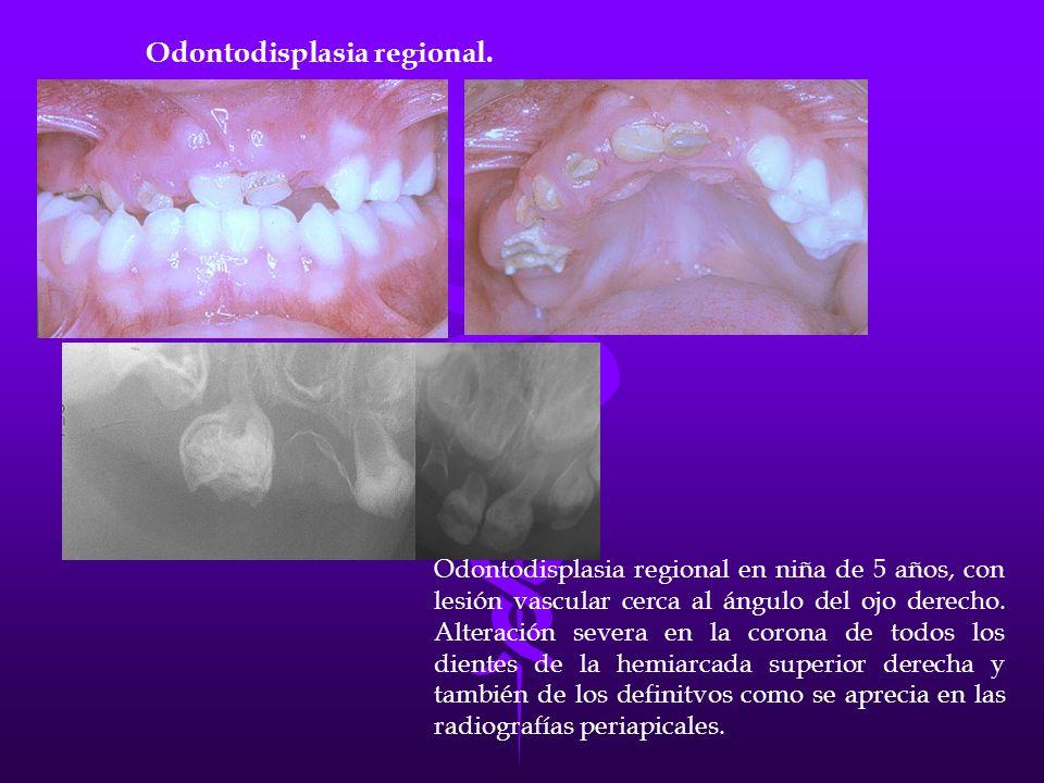 Odontodisplasia regional en niña de 5 años, con lesión vascular cerca al ángulo del ojo derecho. Alteración severa en la corona de todos los dientes d