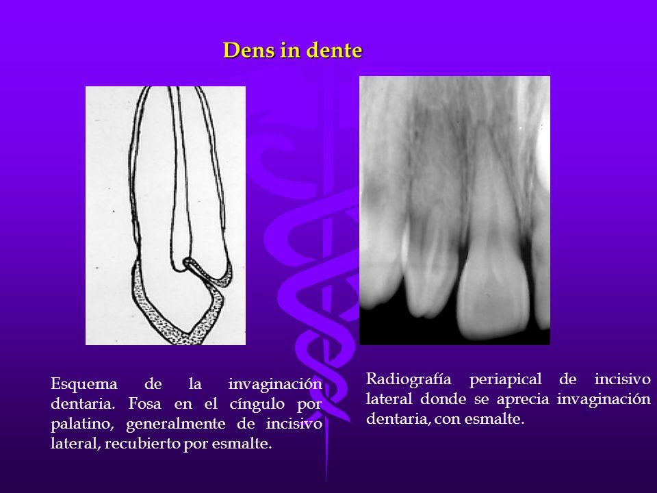 Dens in dente Esquema de la invaginación dentaria. Fosa en el cíngulo por palatino, generalmente de incisivo lateral, recubierto por esmalte. Radiogra
