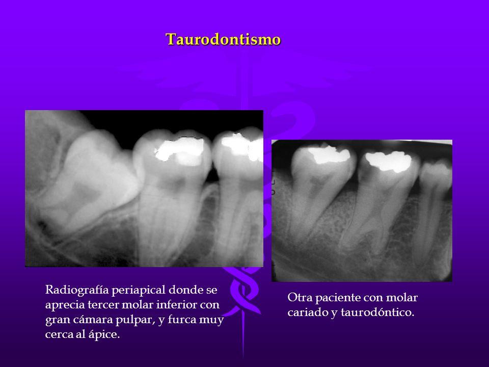 Taurodontismo Radiografía periapical donde se aprecia tercer molar inferior con gran cámara pulpar, y furca muy cerca al ápice. Otra paciente con mola