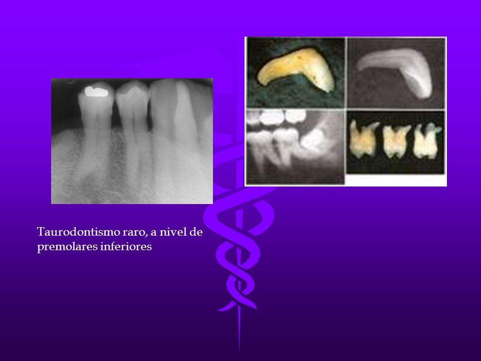 Taurodontismo raro, a nivel de premolares inferiores