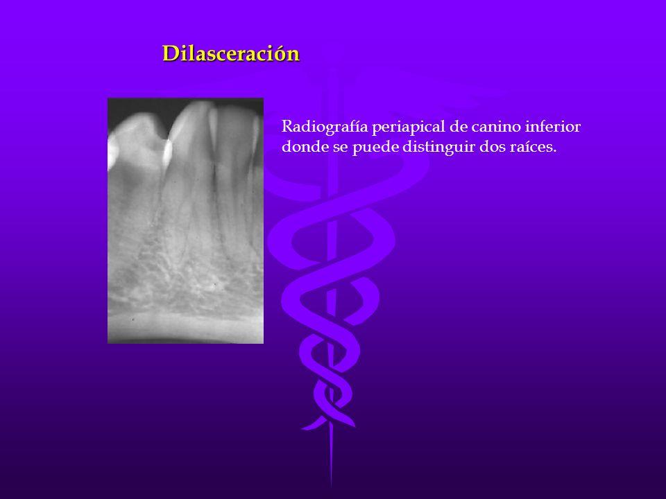 Dilasceración Radiografía periapical de canino inferior donde se puede distinguir dos raíces.