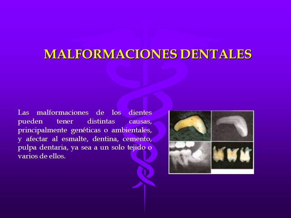 MALFORMACIONES DENTALES Las malformaciones de los dientes pueden tener distintas causas, principalmente genéticas o ambientales, y afectar al esmalte,