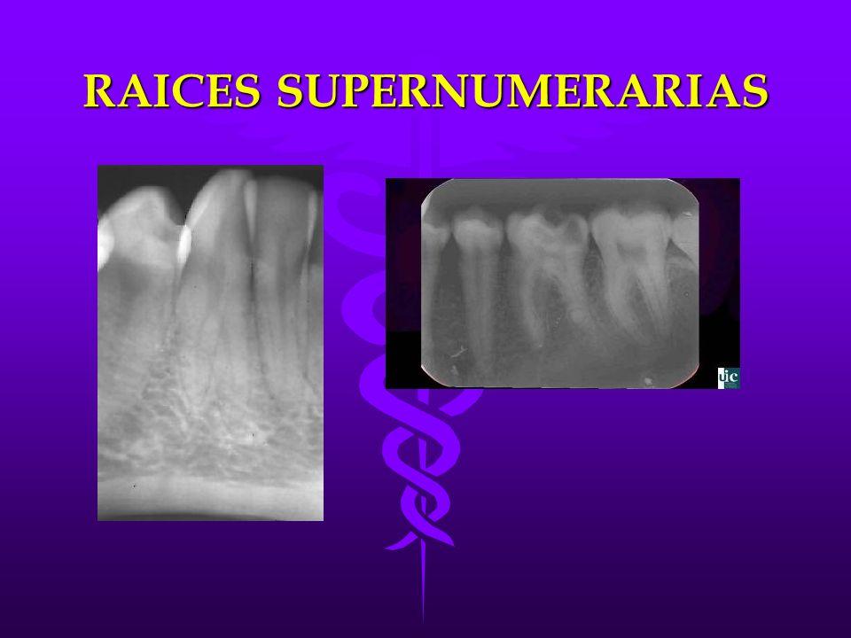 RAICES SUPERNUMERARIAS